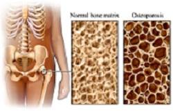 dia-mundial-de-la-osteoporosis