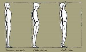 valoracion-postural